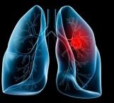 Cáncer de pulmón mata 24 mexicanos al día