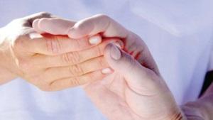 Señales de artritis reumatoide temprana
