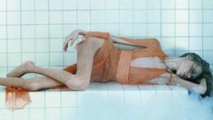 Fotografías muestran cómo es la anorexia en primera persona