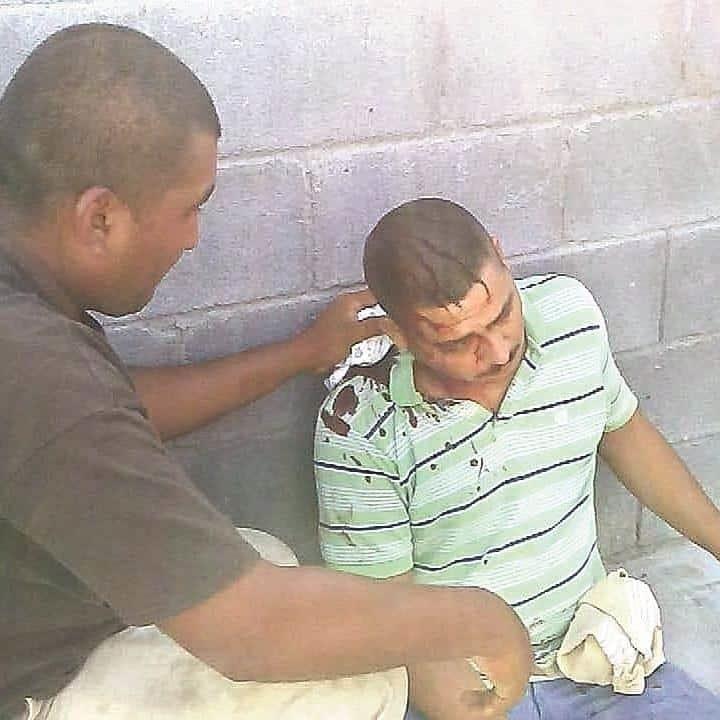 Inocente. El comerciante Christian Montelongo Ramírez recibió un balazo en un hombro cuando quedó en medio de la balacera a bordo de su camioneta.
