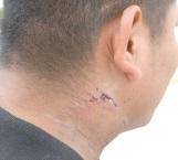 Ataca feroz perro a un peatón que pasaba frente a domicilio