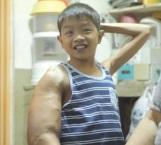 A los 4 años, su brazo comenzó a crecer sin control
