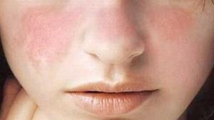 ¿Cuáles son los síntomas más comunes del lupus?