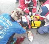 Comerciante ambulante grave al sufrir atropello