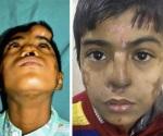 Milagro médico cambió la vida a un niño sin nariz