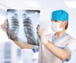 Radiología la mejor aliada en el manejo del cáncer