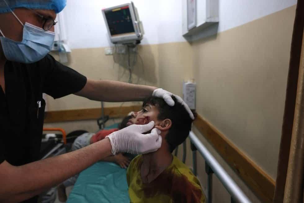 Un niño recibe atención sanitaria tras el bombardeo de Israel, este lunes en un hospital de la zona norte de la franja de Gaza. MOHAMMED ABED AFP